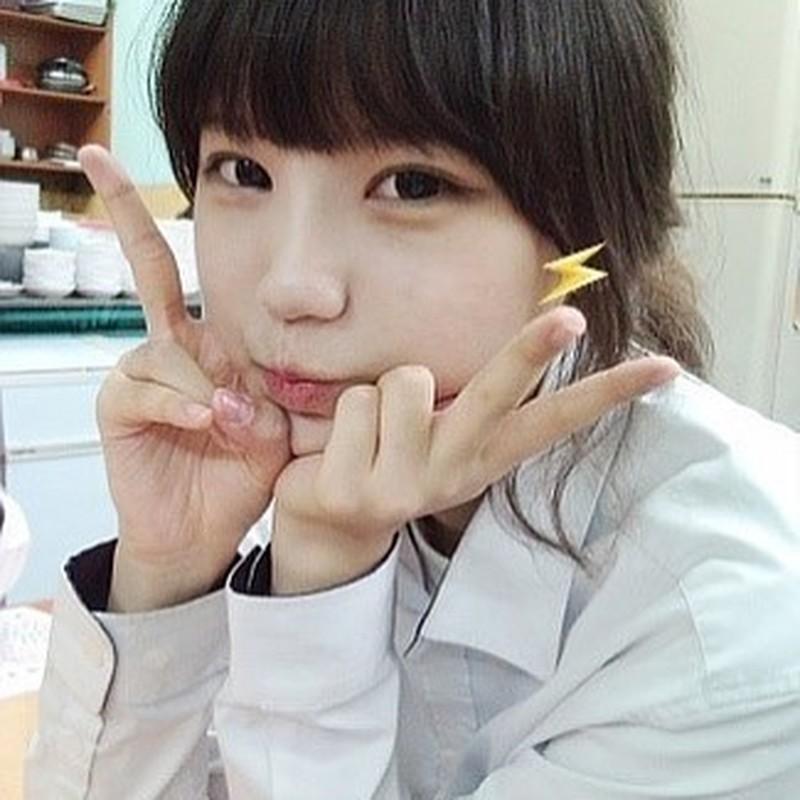 Hot girl Han Quoc lo anh chua phau thuat tham my khien dan mang khiep dam-Hinh-5