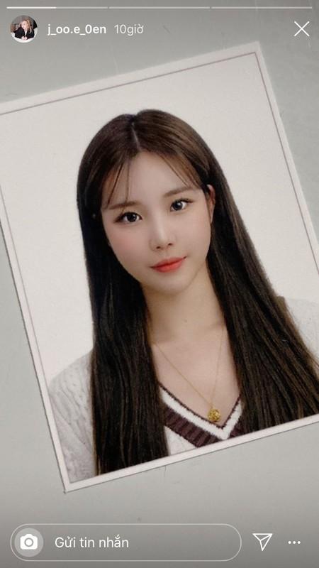 Nu idol bi che xau nhat Kpop dang anh khien ai cung giat minh-Hinh-3