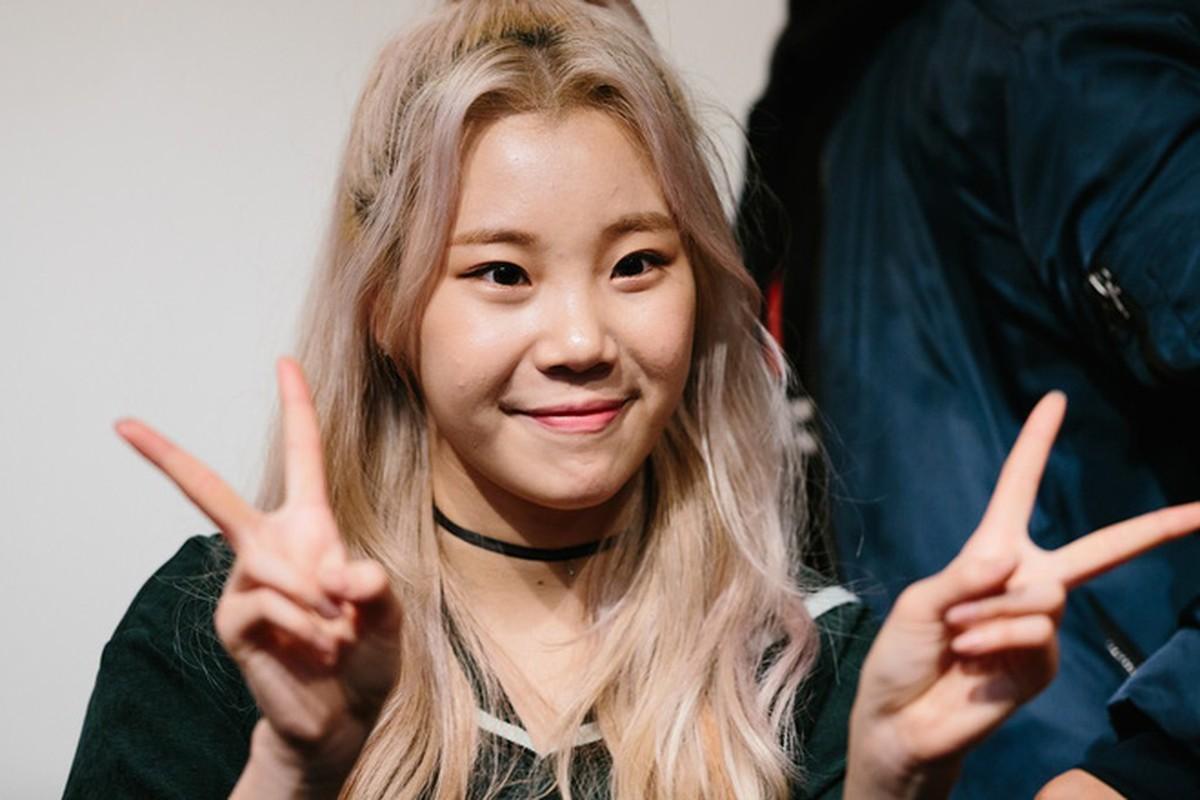 Nu idol bi che xau nhat Kpop dang anh khien ai cung giat minh-Hinh-8