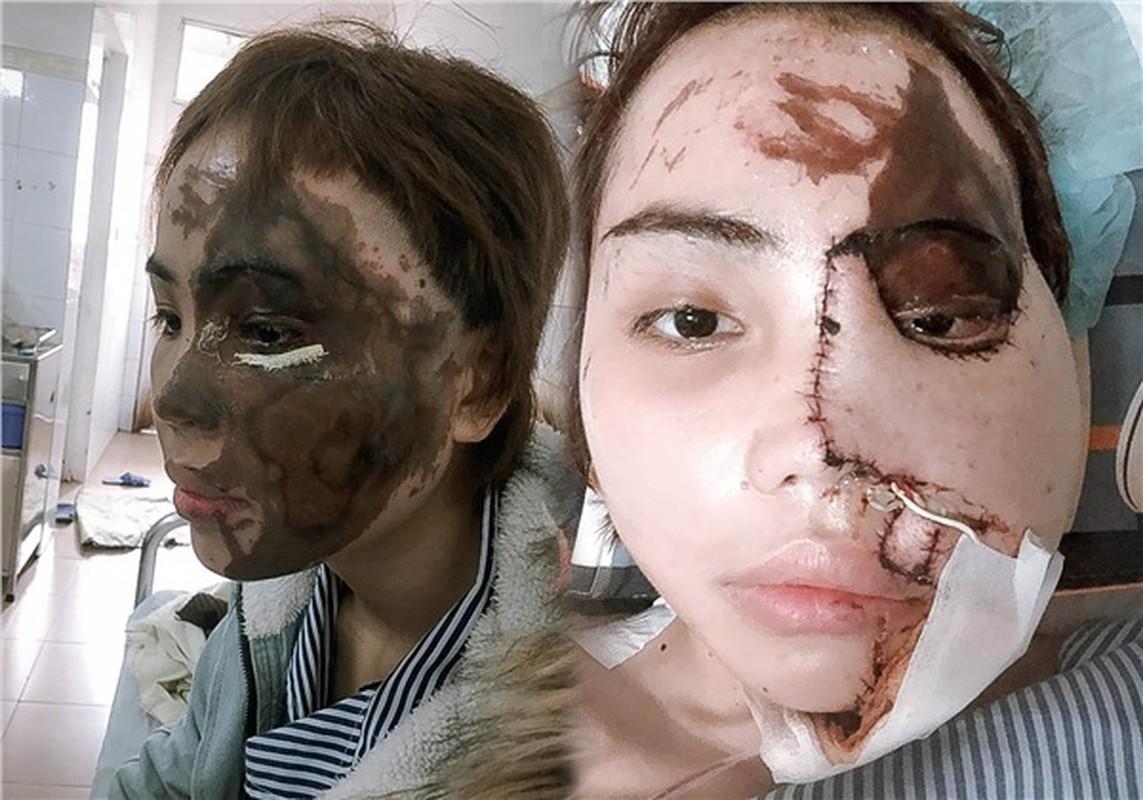 Co gai Da Nang bi chong chua cuoi tat axit hoi sinh than ky-Hinh-2