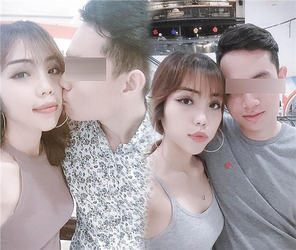 Co gai Da Nang bi chong chua cuoi tat axit hoi sinh than ky