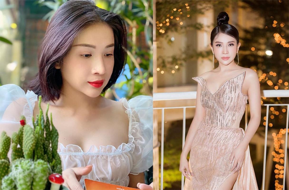 Kha Nhu bi bong gan het mat giong Hong Ngoc, gio xinh bat ngo-Hinh-5