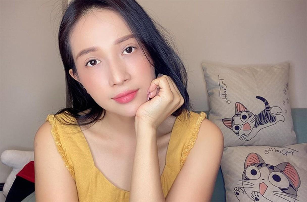 Kha Nhu bi bong gan het mat giong Hong Ngoc, gio xinh bat ngo-Hinh-8