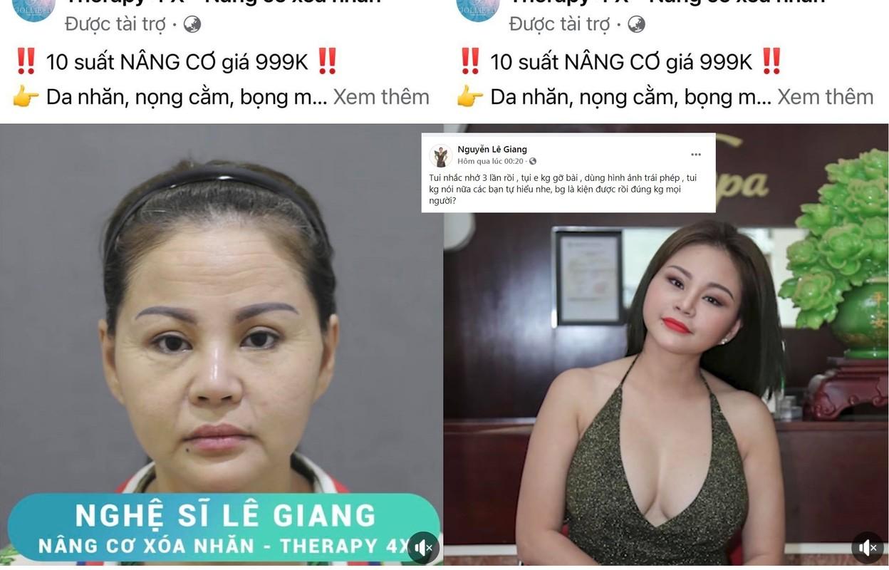 """Bi dang anh da nhan nheo, nhan sac Le Giang ra sao hau """"dao keo""""?"""