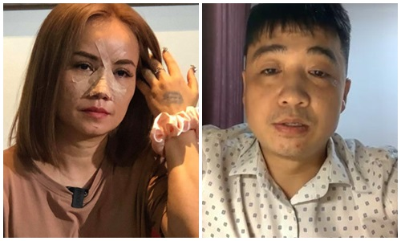 """Hoang Yen bi chong cu to """"sao ac the"""" sau vu dam gay mui-Hinh-4"""