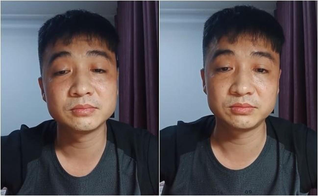 """Hoang Yen bi chong cu to """"sao ac the"""" sau vu dam gay mui-Hinh-5"""