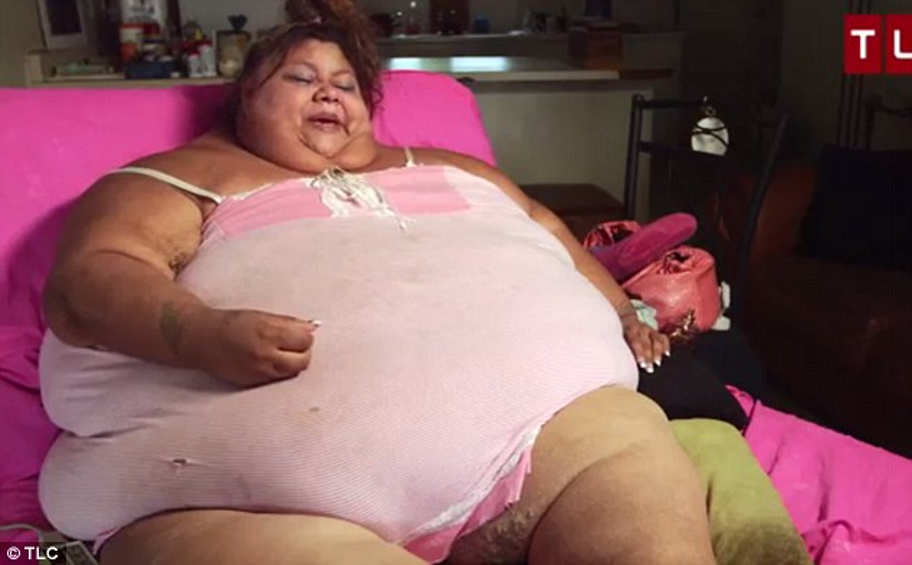 Nguoi phu nu nang 270kg 12 nam khong the ra khoi nha