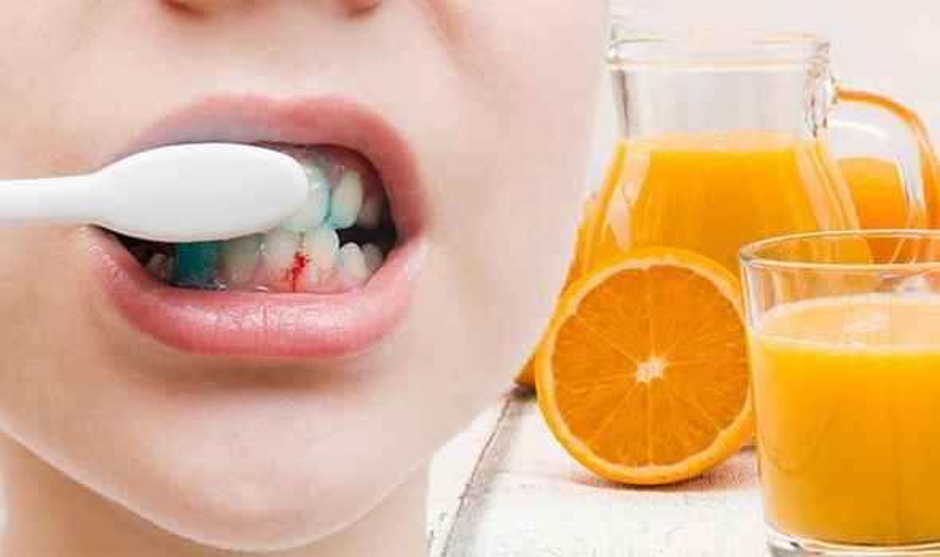 Bo sung ngay vitamin C neu co the ban co nhung trieu chung nay-Hinh-5