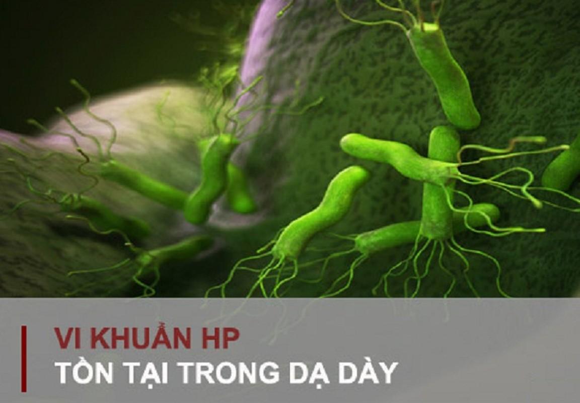 4 benh vat khong tri tan goc de gay ung thu da day-Hinh-5