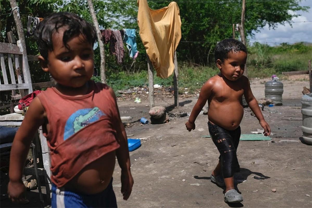 Hinh anh khung khiep ve tinh hinh suy dinh duong cua tre em Venezuela-Hinh-10
