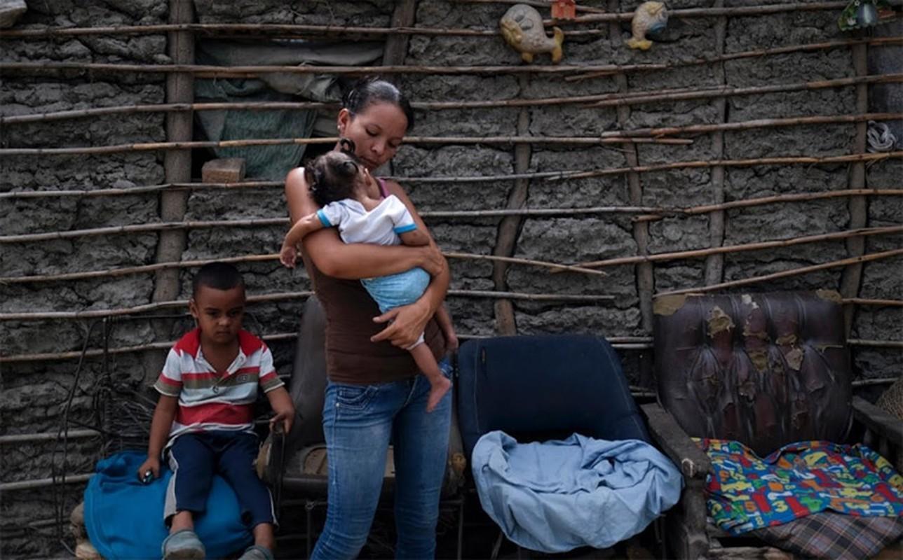Hinh anh khung khiep ve tinh hinh suy dinh duong cua tre em Venezuela-Hinh-11