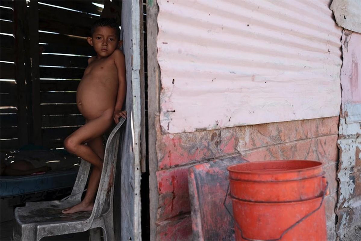 Hinh anh khung khiep ve tinh hinh suy dinh duong cua tre em Venezuela-Hinh-7