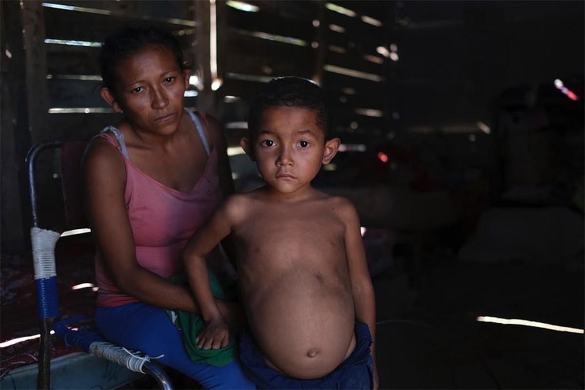 Hinh anh khung khiep ve tinh hinh suy dinh duong cua tre em Venezuela-Hinh-9
