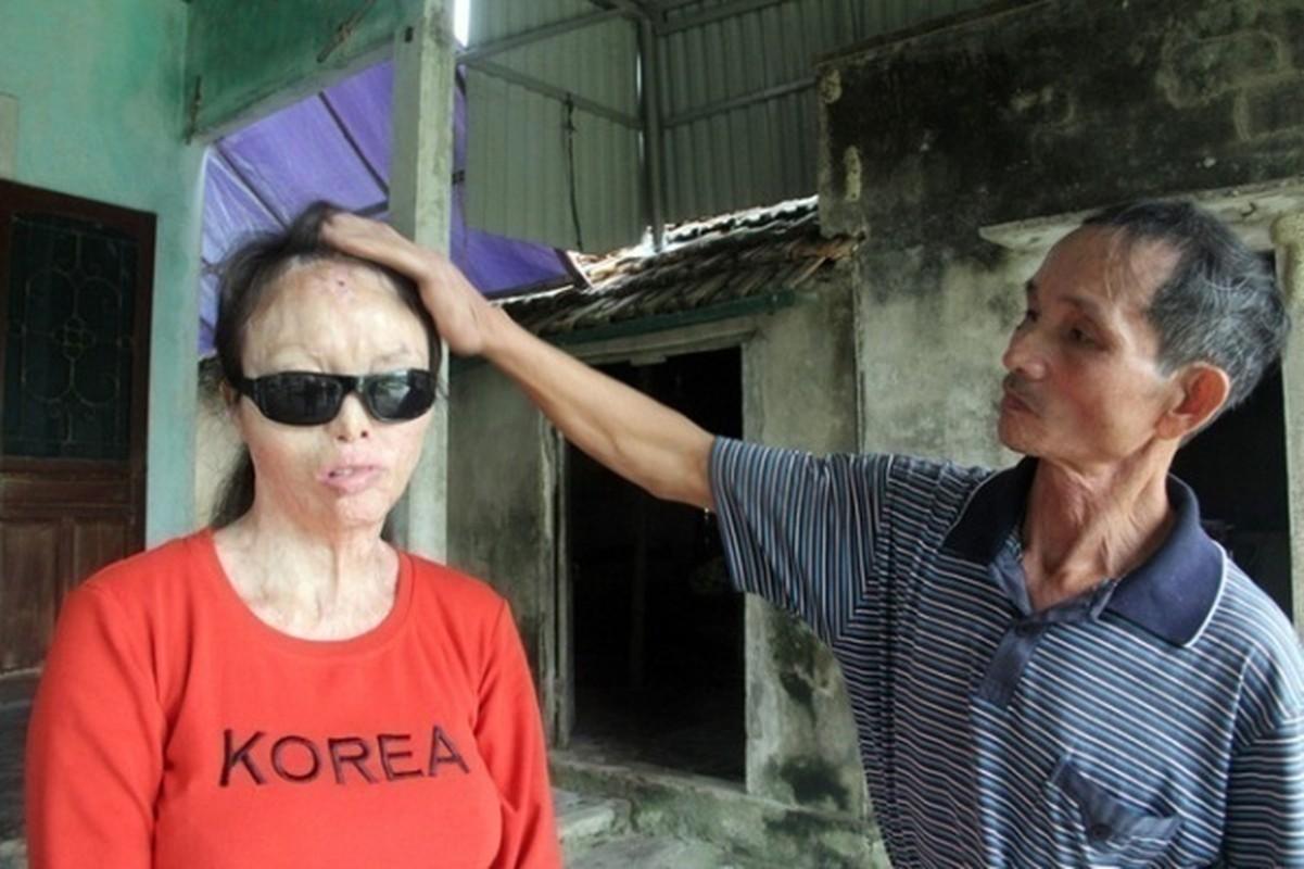 Anh: Nhung vu an tat axit thuong tam gay rung dong du luan-Hinh-14