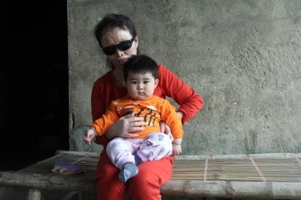 Anh: Nhung vu an tat axit thuong tam gay rung dong du luan-Hinh-15