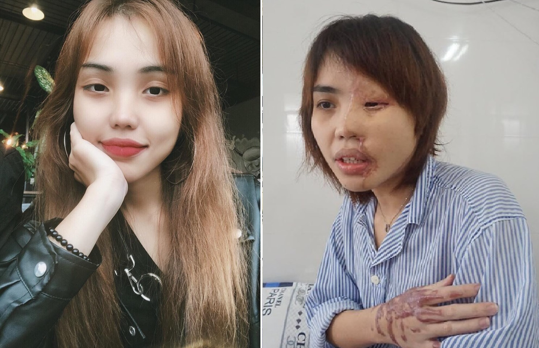 Anh: Nhung vu an tat axit thuong tam gay rung dong du luan-Hinh-3