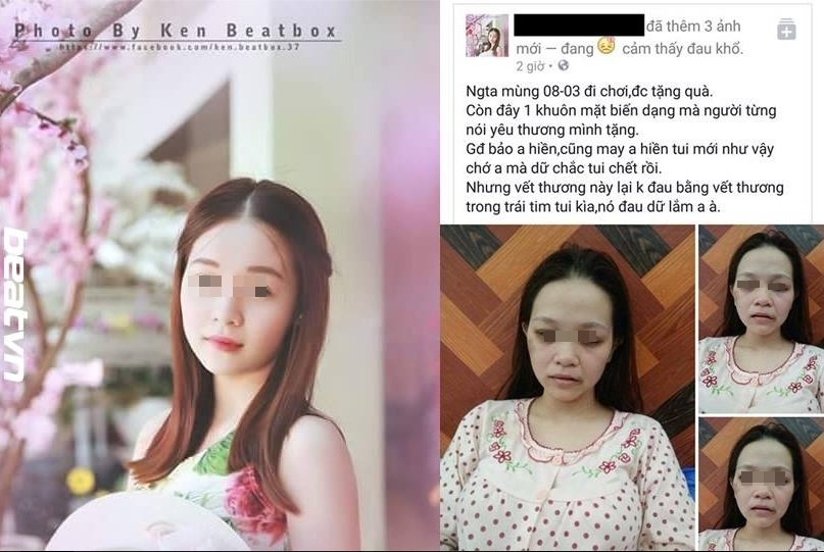 Hong nhan bac phan, nhung co gai xinh dep bi chong vu phu danh bam dap-Hinh-14