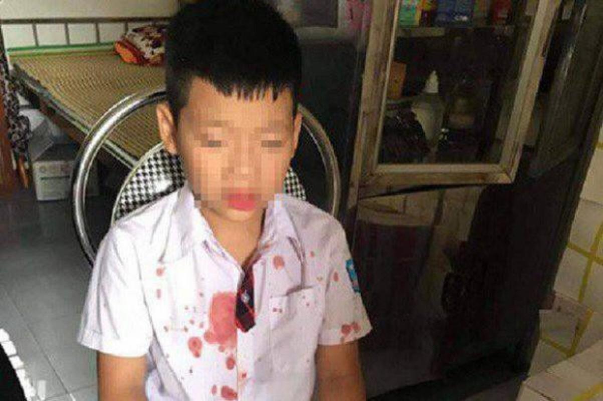 Tin nong ngay 16/7: Khoi to vu an lien quan den lai xe cua chu tich Ha Noi-Hinh-3