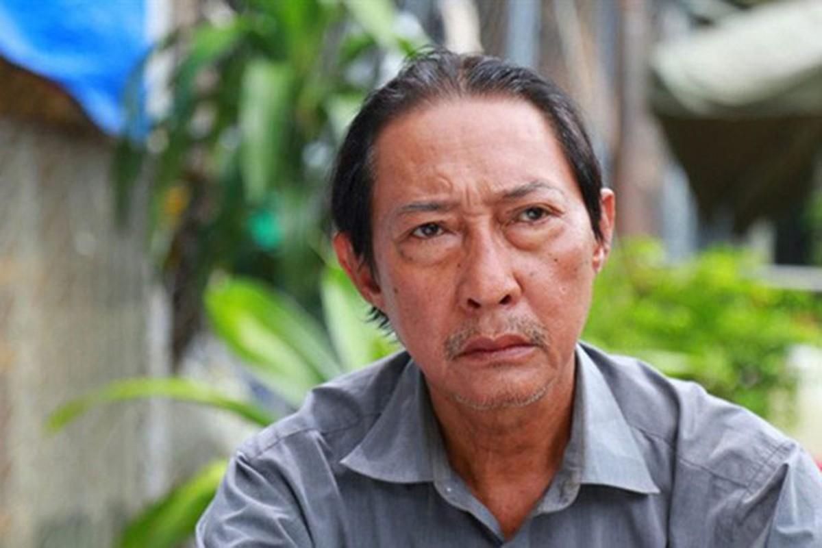 Nghe si Le Binh qua doi, sao Viet dau buon, tiec thuong-Hinh-14