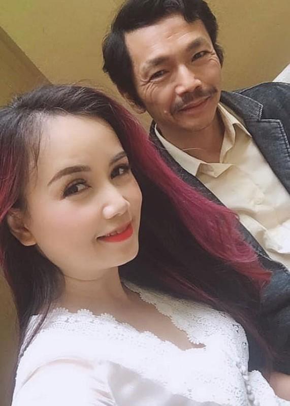 """Soi nhan sac bi nghi """"dai phau"""" cua """"co Xuyen"""" Hoang Yen-Hinh-3"""