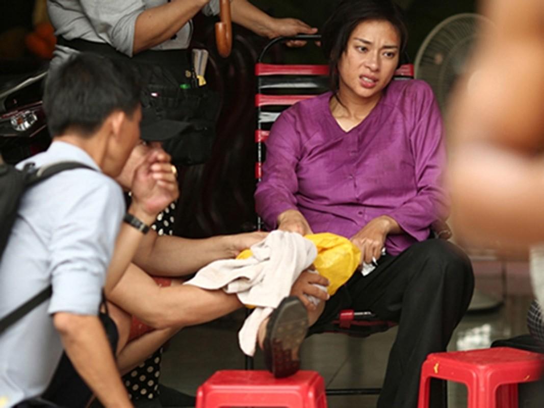 Thanh Binh vo sun goi, loat sao gap tai nan tham tren phim truong-Hinh-2