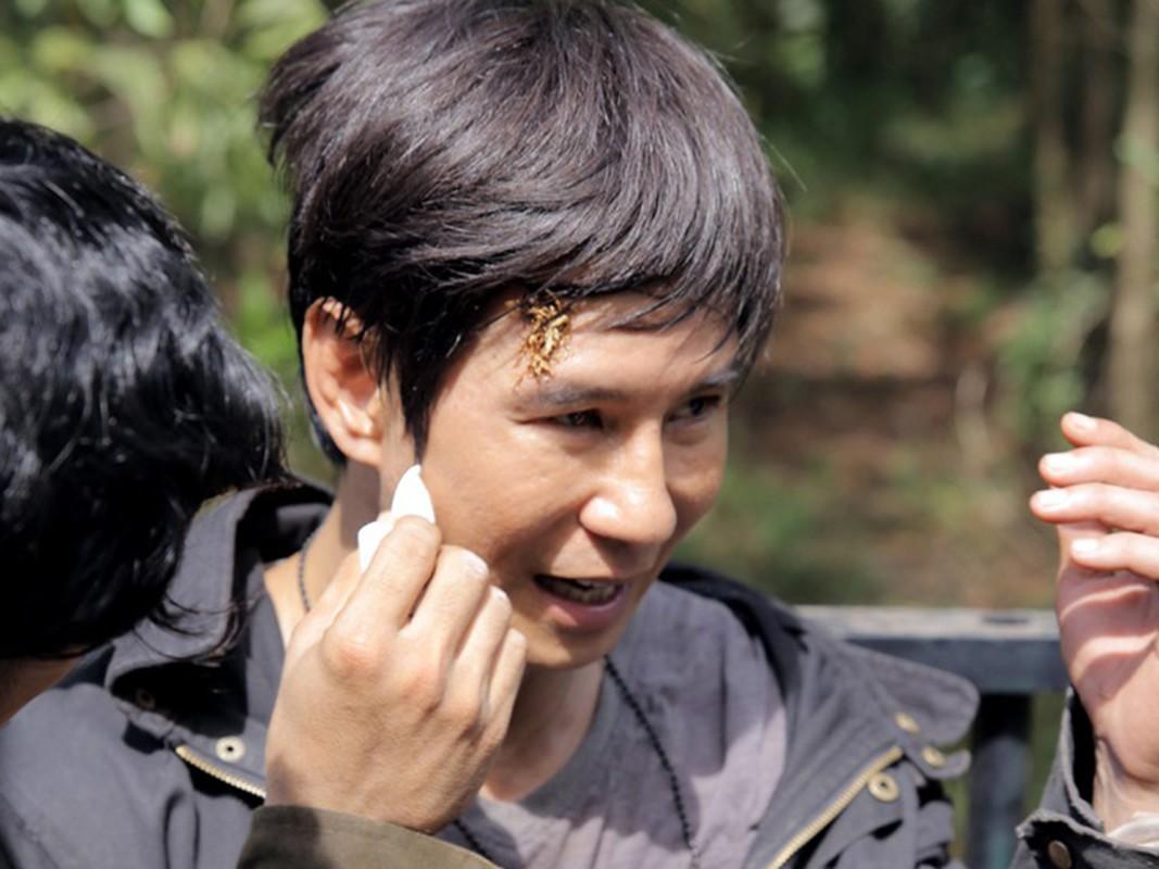 Thanh Binh vo sun goi, loat sao gap tai nan tham tren phim truong-Hinh-3