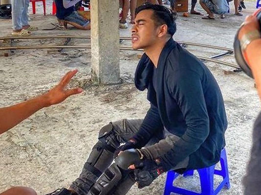 Thanh Binh vo sun goi, loat sao gap tai nan tham tren phim truong