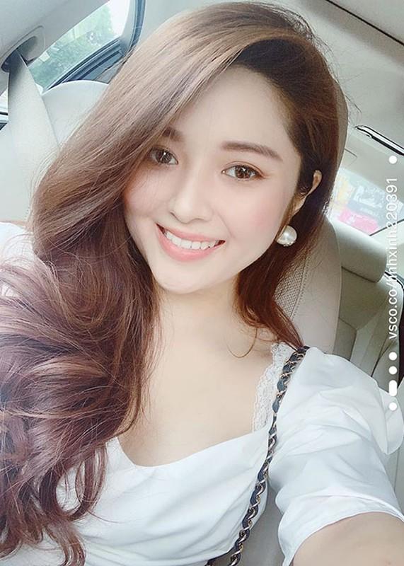 Hanh trinh lac quan chong choi benh ung thu cua MC Dieu Linh-Hinh-9