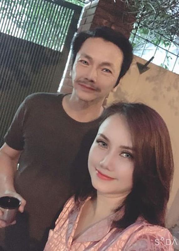 """Soi nhan sac cua """"co Xuyen"""" Hoang Yen sau khi sua mui-Hinh-12"""