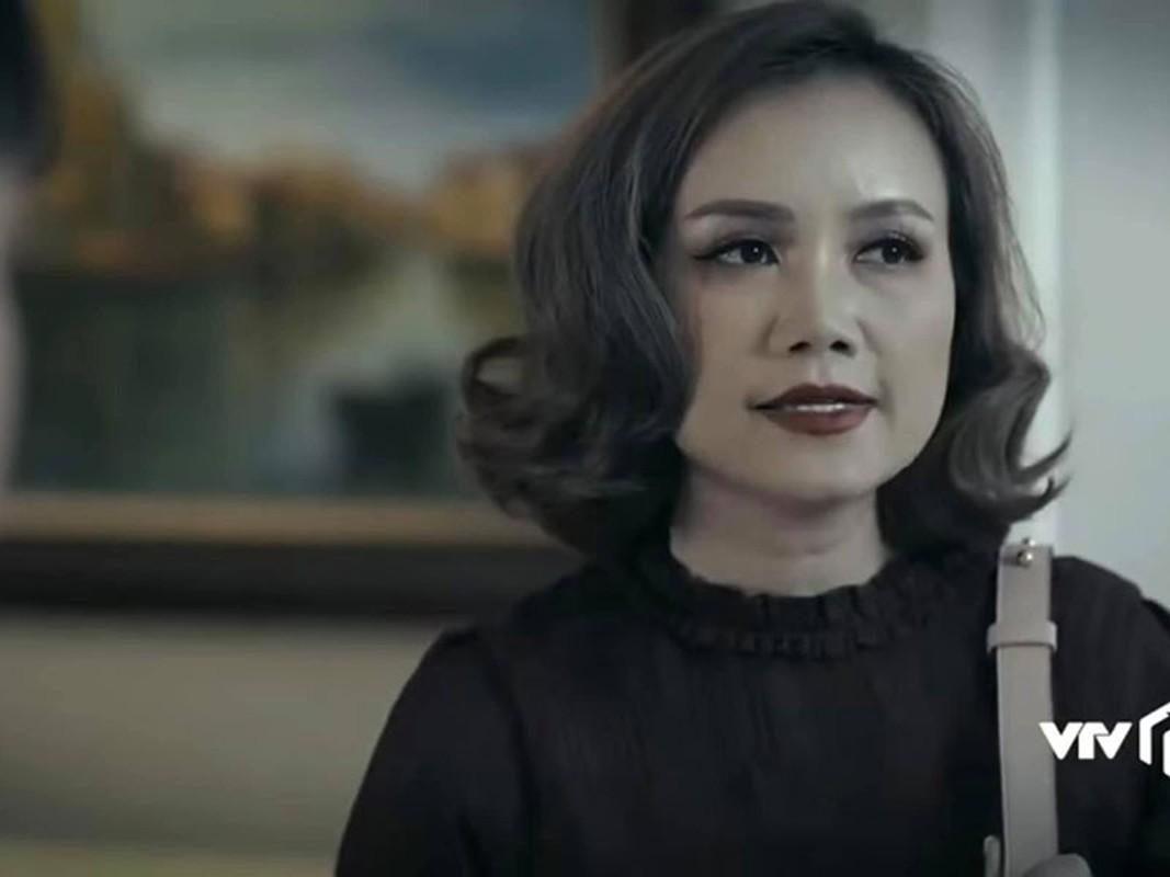 """Soi nhan sac cua """"co Xuyen"""" Hoang Yen sau khi sua mui-Hinh-14"""