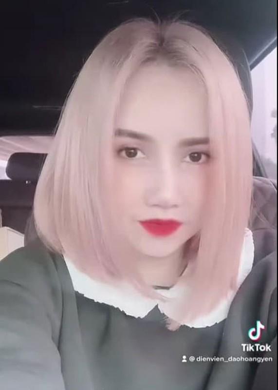 """Soi nhan sac cua """"co Xuyen"""" Hoang Yen sau khi sua mui-Hinh-3"""