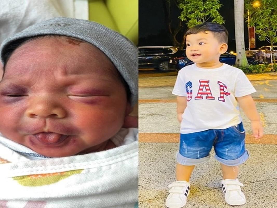 Ho Ngoc Ha ke chuyen sinh non, be Lisa phai dung ong tho-Hinh-9