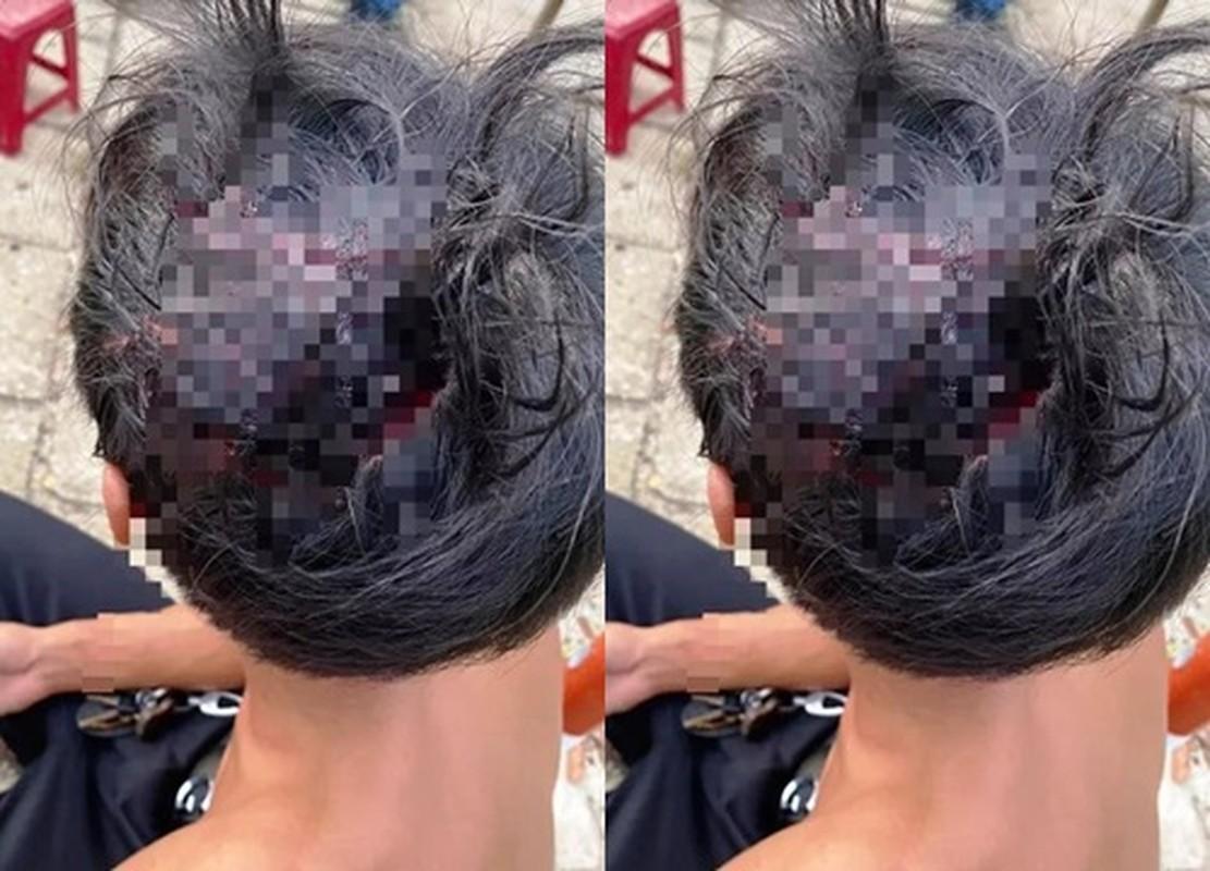 Tin nong ngay 28/9: Tai xe Vinasun va Mai Linh danh nhau be dau