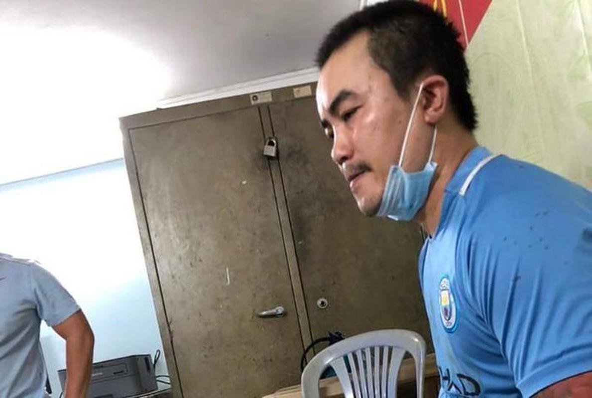 Loi khai cua doi tuong chem lia dau nan nhan o TP HCM-Hinh-2