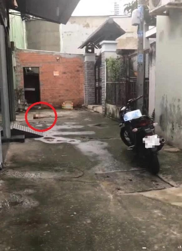 Loi khai cua doi tuong chem lia dau nan nhan o TP HCM-Hinh-4