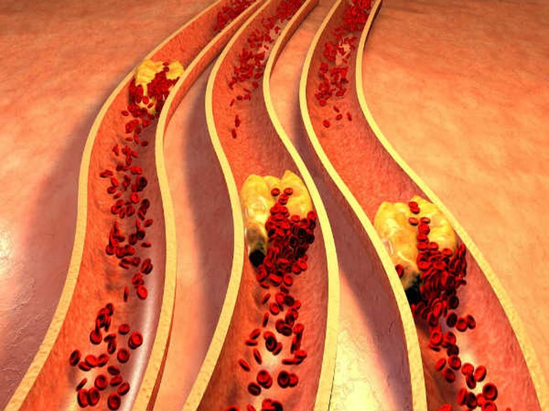 Nhung su that ve cholesterol khong phai ai cung biet-Hinh-10