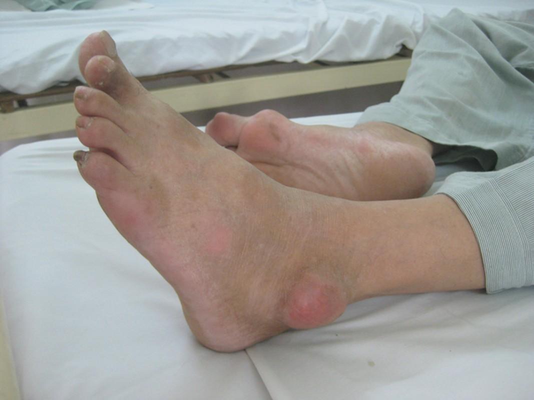 Dau hieu chung to ban da mac benh gout-Hinh-2