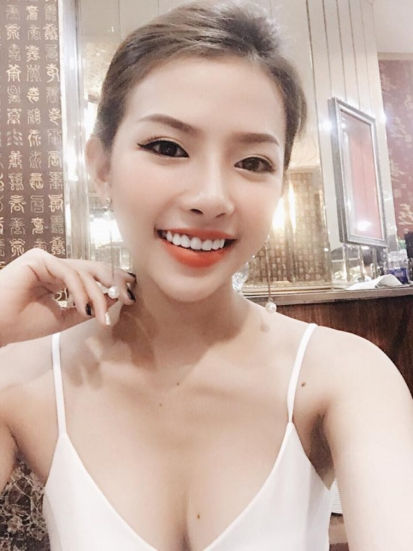 """Bi an"" dang sau lan da mat moc min mang cua vo chua cuoi Phan Manh Quynh-Hinh-6"