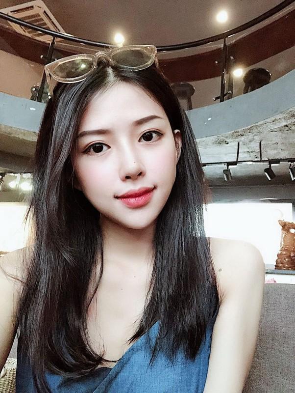 """Bi an"" dang sau lan da mat moc min mang cua vo chua cuoi Phan Manh Quynh-Hinh-9"