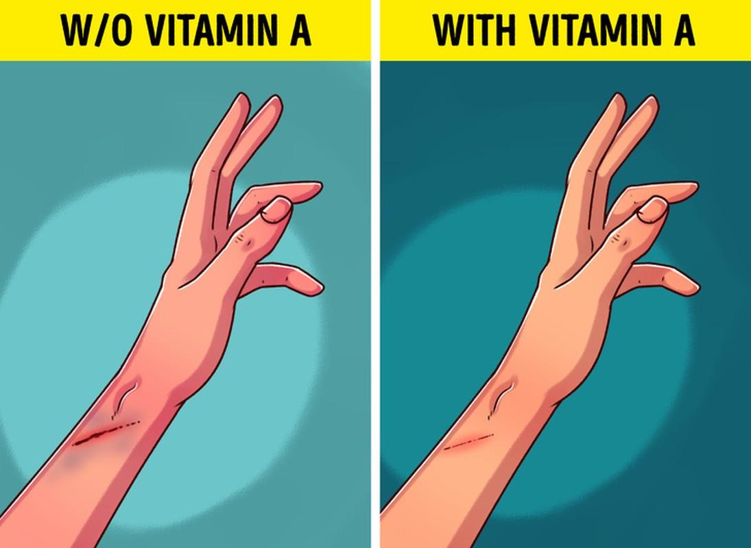 7 dau hieu canh bao co the thieu vitamin A, can chu y o tre-Hinh-5