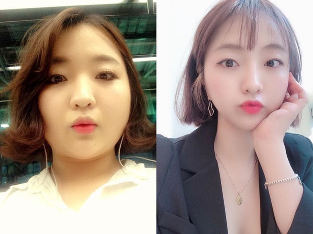 "Bi ban trai ""da"" vi beo, co gai Han giam gan 30kg thanh hot girl-Hinh-8"
