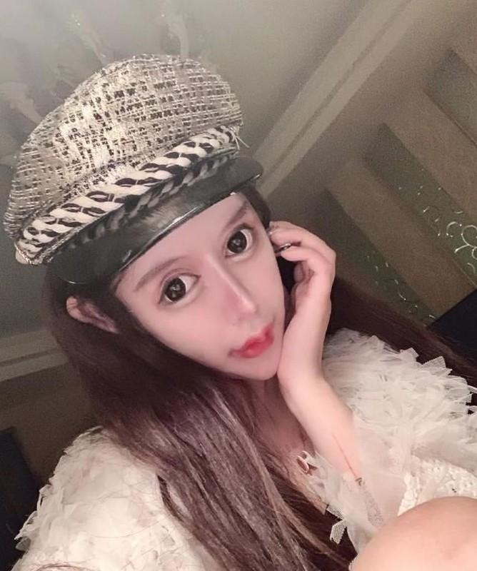 "Tham hoa tham my: Co gai hoa ""mat ran"" sau 60 lan ""dao keo""-Hinh-8"