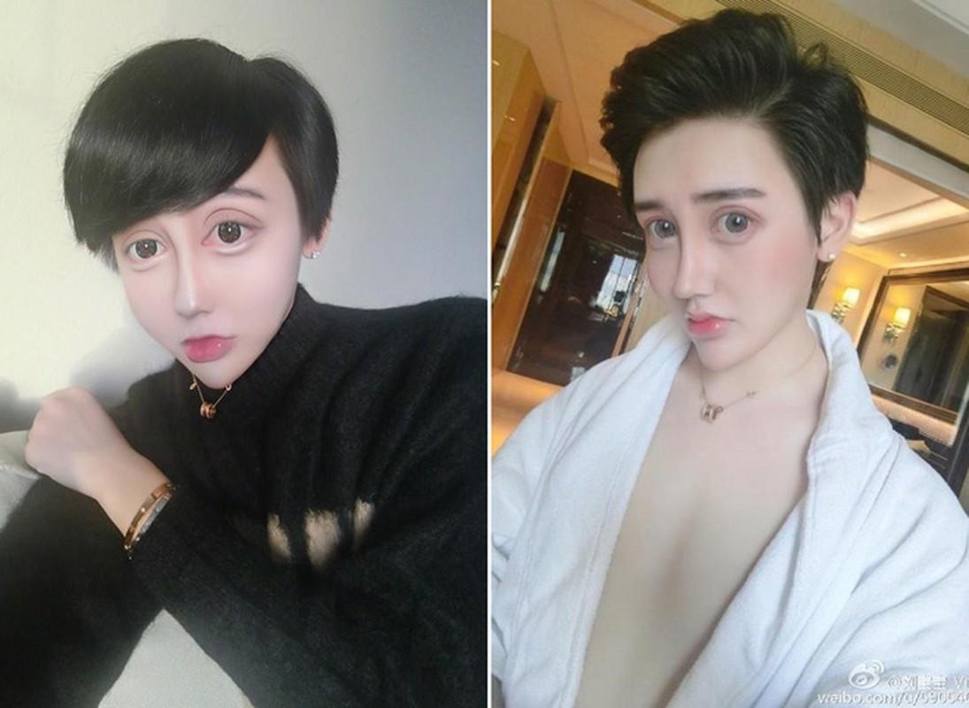 "Tham hoa tham my: Co gai hoa ""mat ran"" sau 60 lan ""dao keo""-Hinh-9"