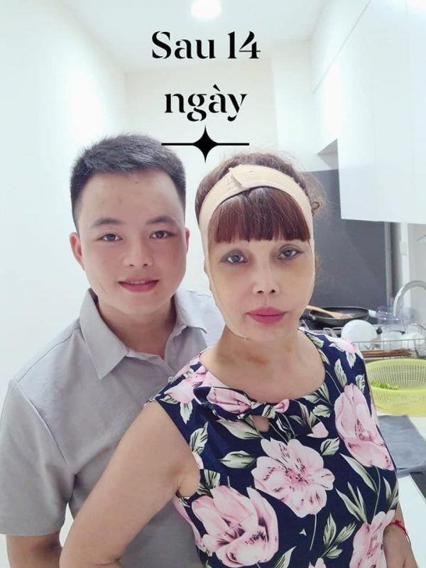 """Guong mat meo xech hau """"dao keo"""" cua co dau 62 tuoi duoc cai thien?-Hinh-7"""