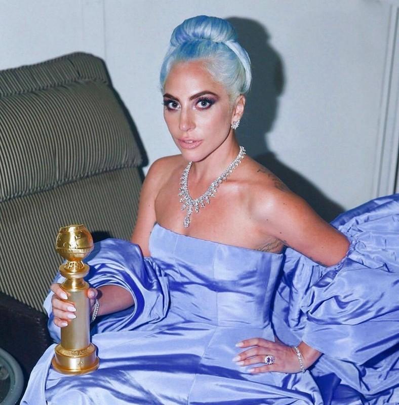 """Khan gia """"tron mat"""" boi nhung mau toc nhuom noi bat cua Lady Gaga-Hinh-6"""