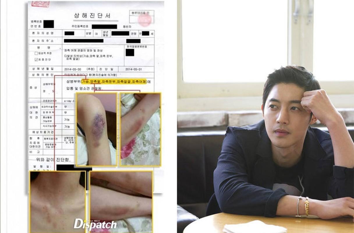 Nhung su kien rung dong showbiz Hoa-Han 2014-Hinh-10