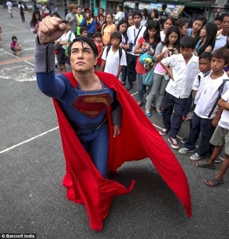 18 nam phau thuat tham my de giong superman-Hinh-2