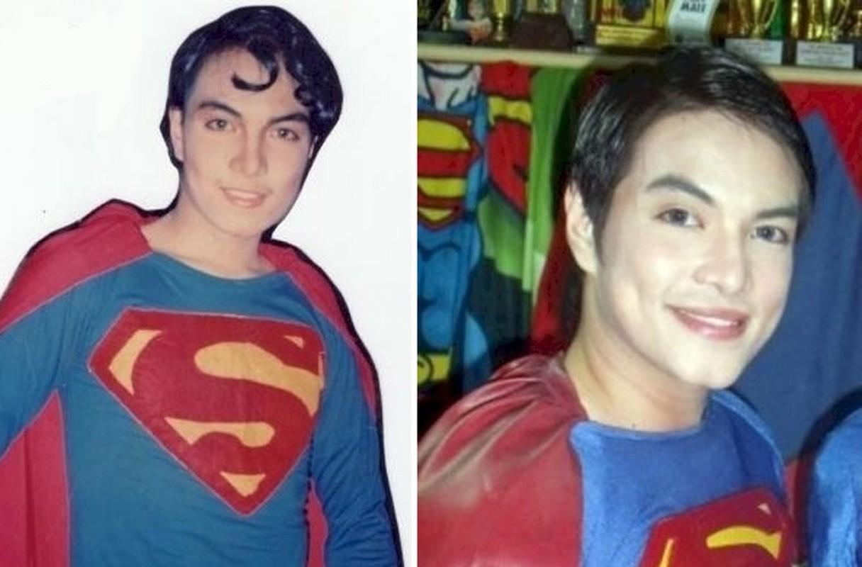 18 nam phau thuat tham my de giong superman-Hinh-6