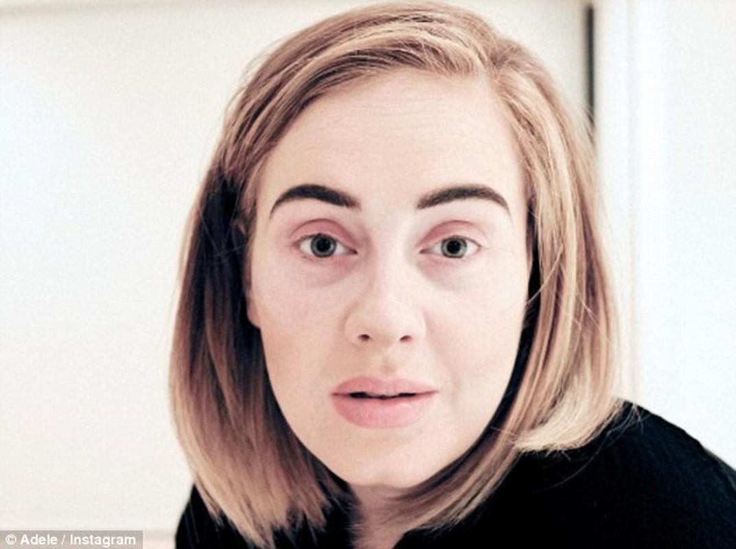 Adele lo mat moc xau xi khien fan te ngua-Hinh-2