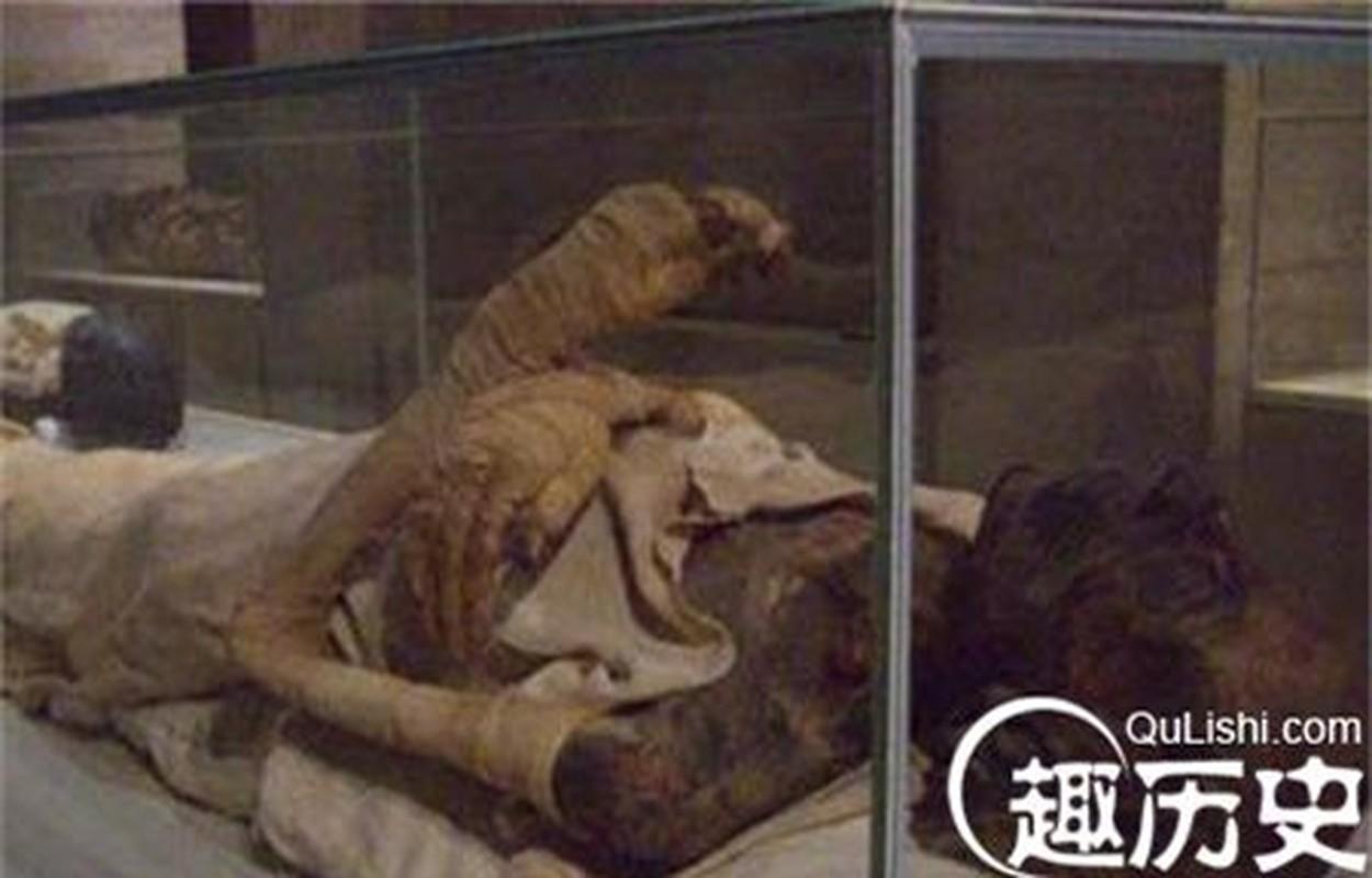 Bi mat gay soc xac uop mang thai trong mo Tan Thuy Hoang-Hinh-5